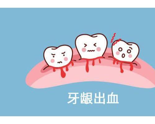 紫馨好医生张程|牙龈出血到牙齿松动仅3步!千万别轻视!